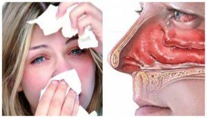 Заложен нос (сизый, отек), прозрачные сопли