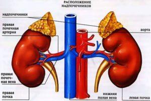 Аденома надпочечника, альдостерон/ренин