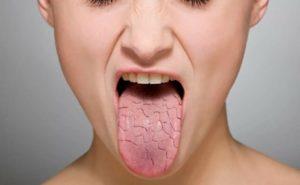 Сухость во рту и вздутие пострянное