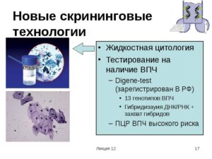 Жидкостная цитология и впч 16