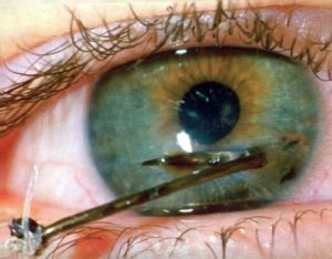 Заноза в глазу