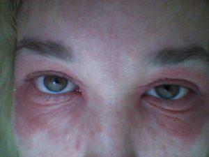 Отек и сыпь вокруг глаза