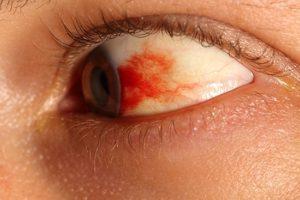 Отеки и кровоизлияния в глазах после рвоты