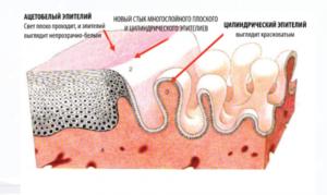 Ацето белый эпителий