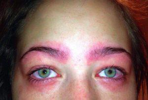 Ожог глаза краской для волос