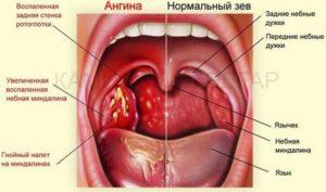 Частые рецидивы гнойной ангины