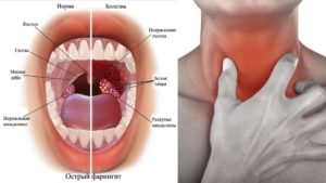 Болит горло внутри