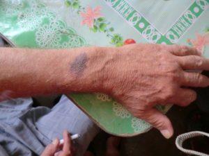 Белые пятна на рука, появляются и пропадают