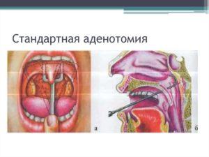 Болят уши после удаления миндалин и аденоидов
