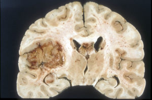 Боюсь опухоли мозга