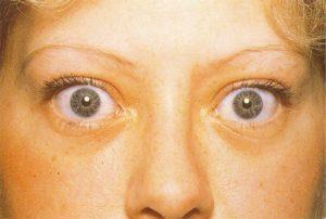 Тиреотоксикоз и глаза