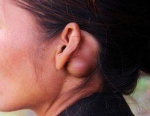 Опухоль под ухом