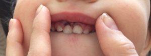 Нарост на уздечке верхней губы
