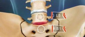 Остеохондроз поясничного отдела позвоночника, протрузия диска L5-S1