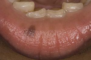 Белые полосы вдоль зубов на слизистой оболочки рта, облазит слизистая