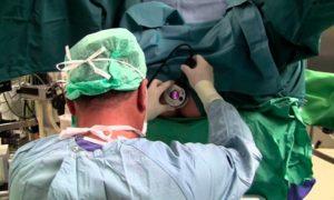 Шишка после операции на геморрой
