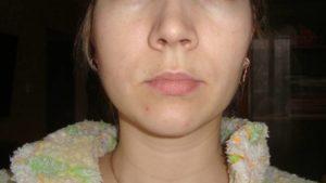Опухлость подбородка, ноют нижние передние зубы