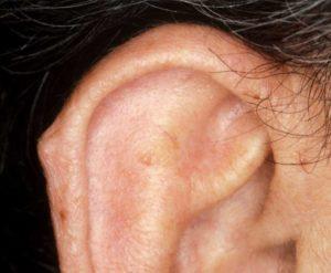 Шишка в ушной раковине