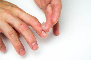 Атопический дерматит, грибок кожи рук и ногтей, что это?