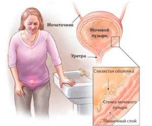 Боль при беременности в мочевом пузыре