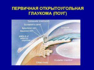 Нозальные при открытоугольной глаукоме