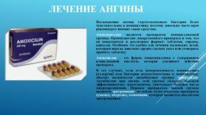 Хронический тонзиллит, нужен ли антибиотик