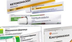 Отрубевидный лишай препараты для лечения