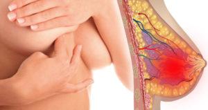 Болит грудь подозрение на рак