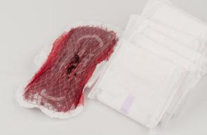 Кровавые выделения на трусах