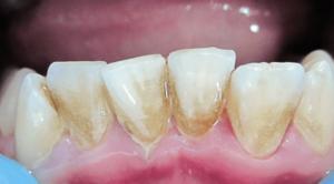 Зубной камень или кариес