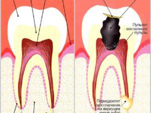 Ноет зуб после лечения кариеса