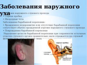 Болит ухо, сузился слуховой проход