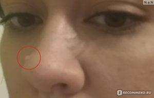 Удаление родинки на носу