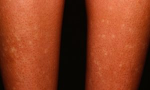 Белые пятна на ноге