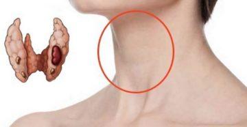 Узел в щитовидной железе у девочки 16 лет