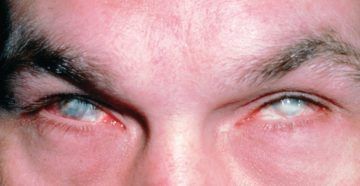 Химический ожог глаза аммиаком