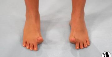 Задирается большой палец на ноге