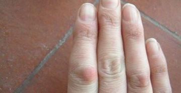 Воспаление фаланги безымянного пальца