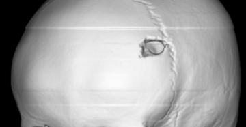 Эозинофильная гранулема костей черепа