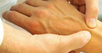 Болят суставы кистей рук у сестры