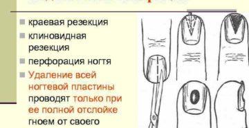 Удалили ноготь - подногтевой панариций