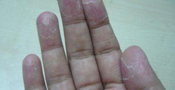 Шелушатся и облазят подушечки пальцев