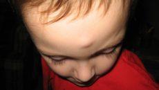 Ушиб носа шишка