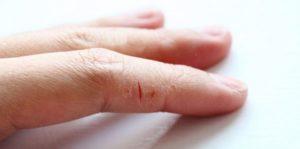 Шелушение кожи, трещины на фалангах пальцев
