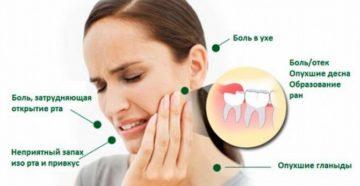 Боль в груди отдаёт в зубы