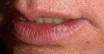 Гиперкератоз слизистой щеки