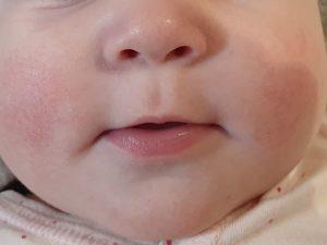 Покраснение на лице у грудничка после введения прикорма или нет