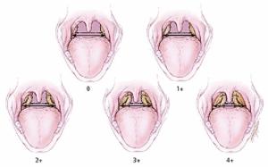 Гипертрофия миндалин и аденоиды 2-3 степени