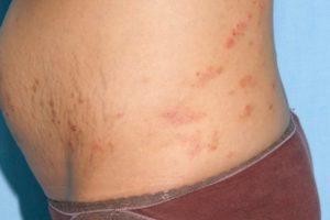 Контактный дерматит на животе
