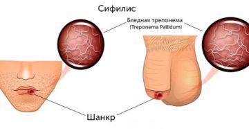 Язвочка на половом члене, признаки сифилиса